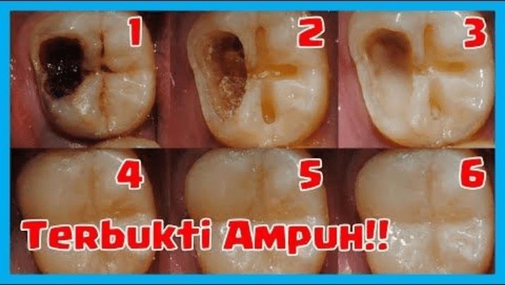 Cara Mengatasi Sakit Gigi Berlubang Tanpa Obat Pada Anak